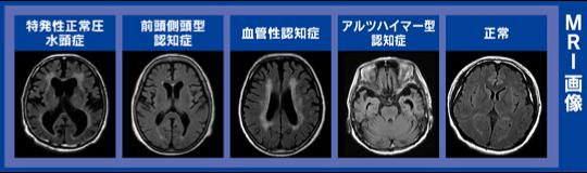 側 認知 症 前頭葉 頭 型
